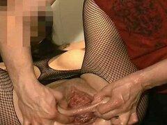 Destrucción de fisting anal y vaginal